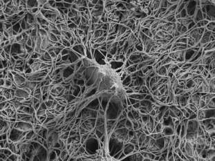 lossy-page1-1024px-An_osteocyte_in_rat_bone_exposed_by_resin_cast_etching.tif